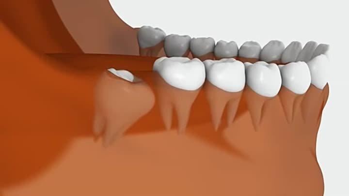 Что делать когда опухает десна, но зуб не болит?