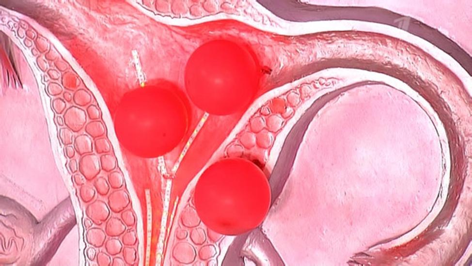 Сколько лежать в больнице с полипами в матке. удаление полипа эндометрия