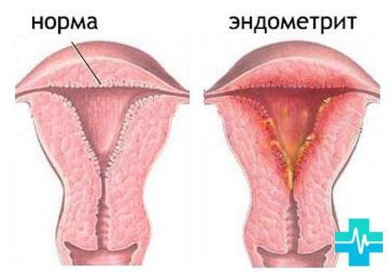 Два типа возможных причин розовых выделений у женщин