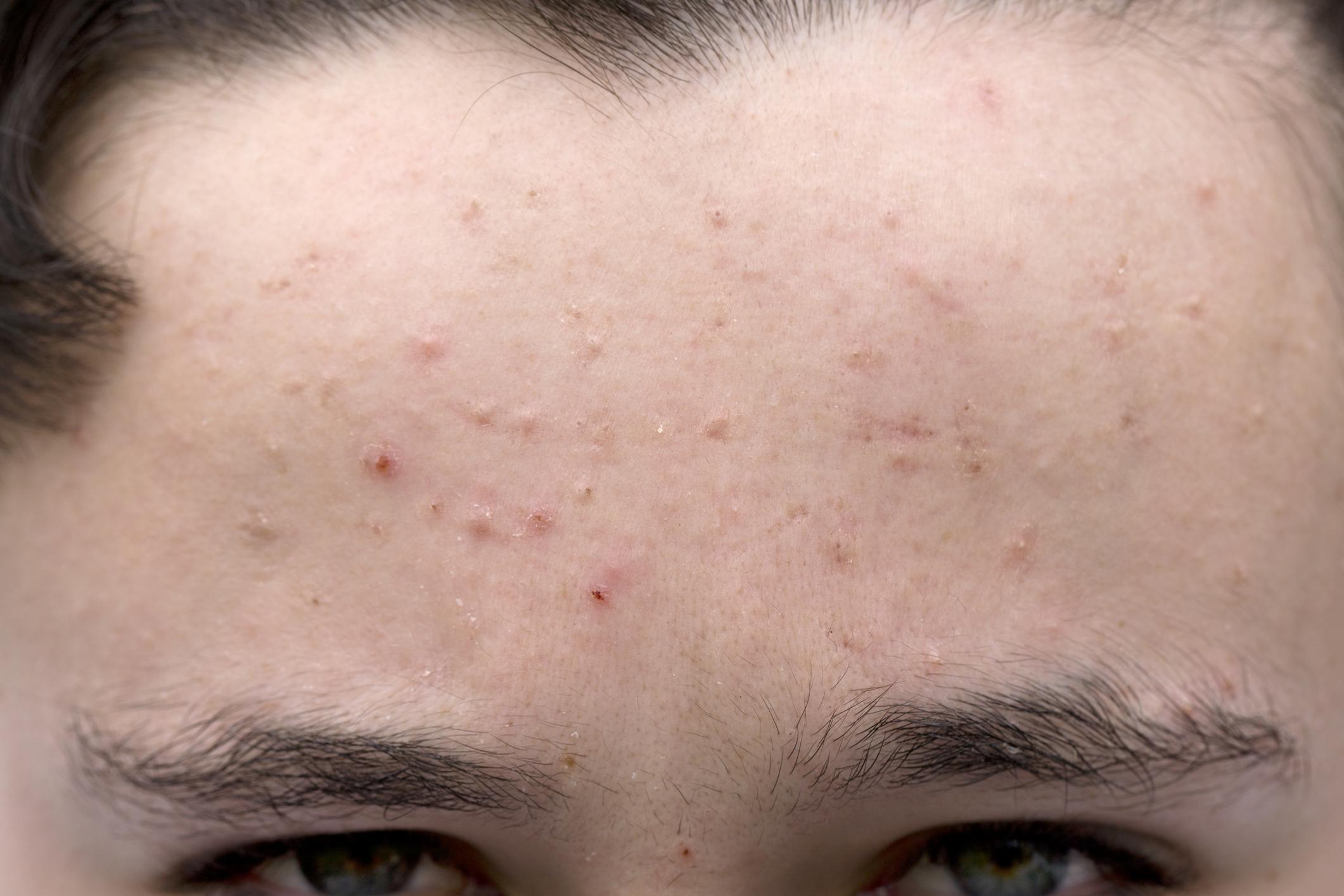 Эффективные препараты для лечения демодекоза на лице
