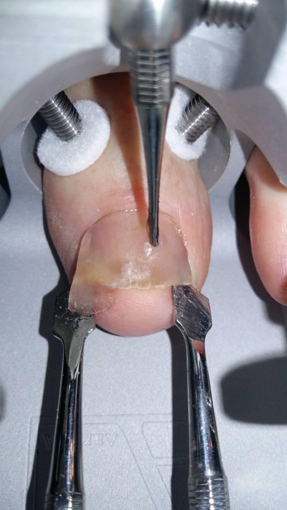Удаление вросшего ногтя лазером: особенности процедуры, преимущества и недостатки