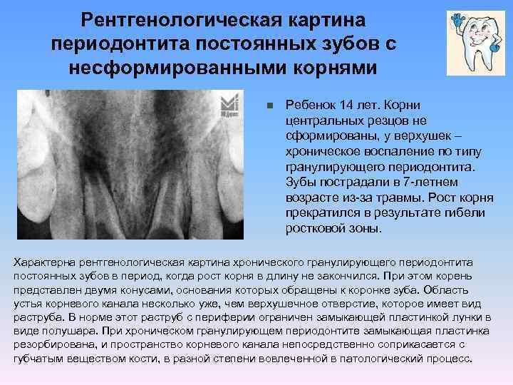 Периодонтит у детей молочных и постоянных зубов: причины, лечение
