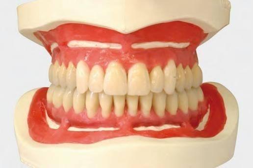 Признаки ортогнатического зубного прикуса: фото и полная характеристика
