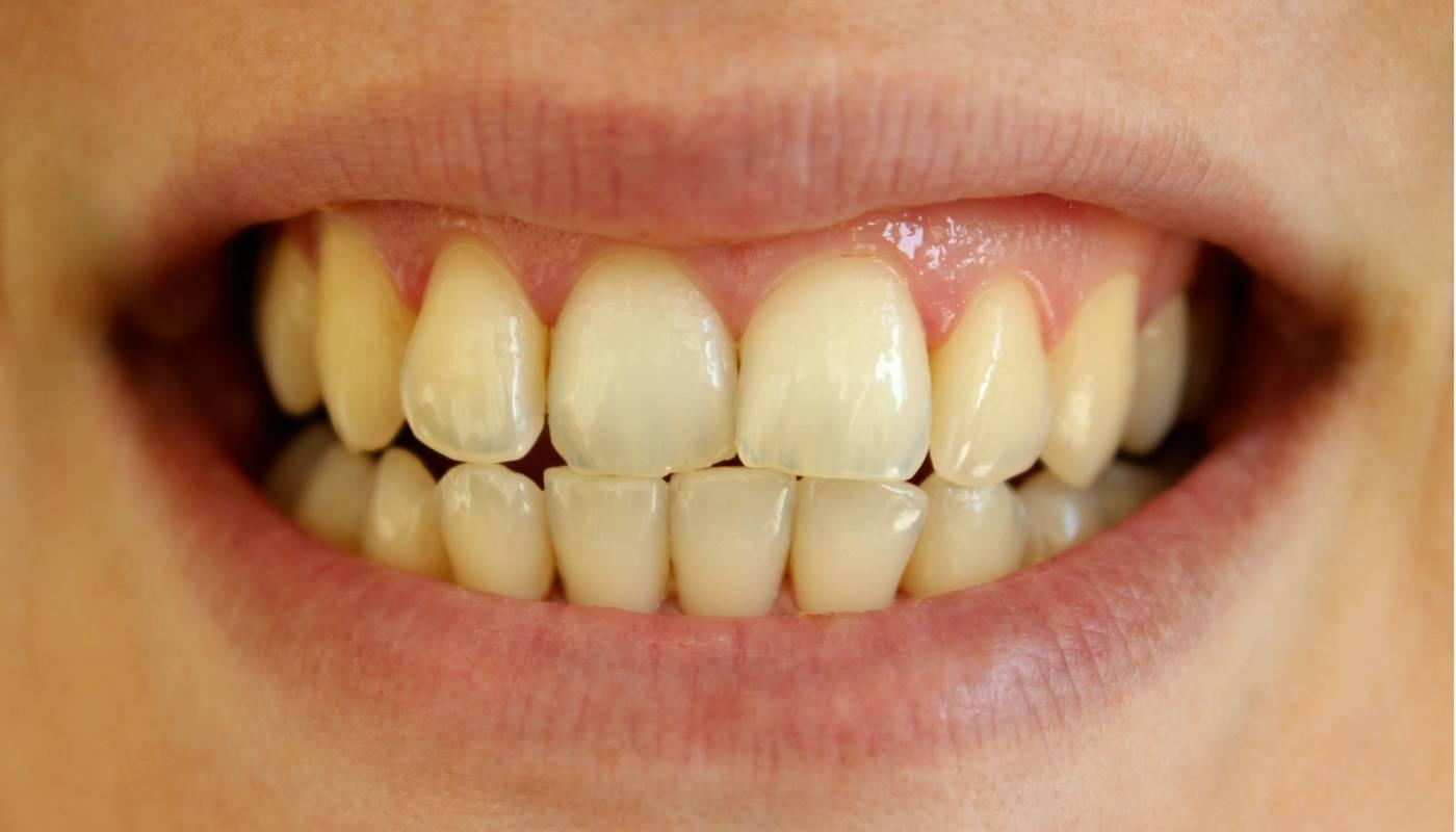 Вредно ли отбеливание зубов в стоматологии и дома?