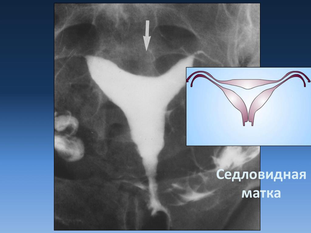 Двурогая матка и беременность. подобная аномалия не помеха беременности