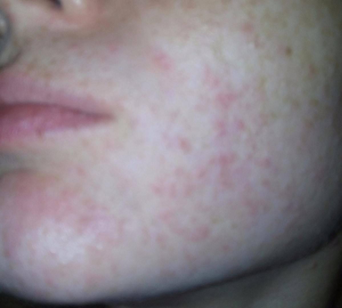 Возможные причины и методы устранения сыпи на лице у женщин