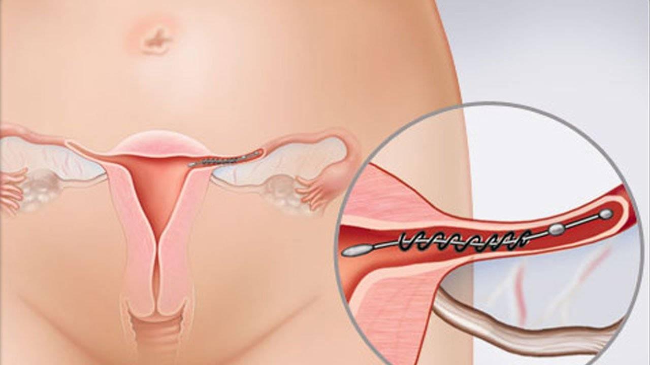 Спираль мирена: действие контрацептива, особенности применения, эффективность