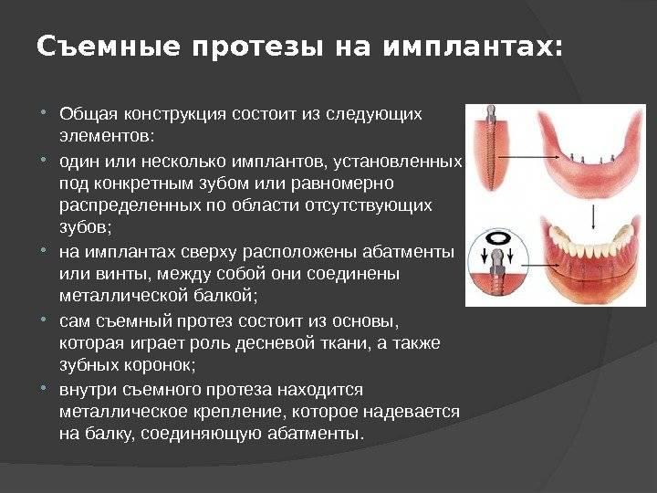 Протезирование молочных зубов у детей: виды детских зубных протезов, показания к протезированию