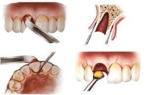 Что делать если опухла щека после лечения зуба