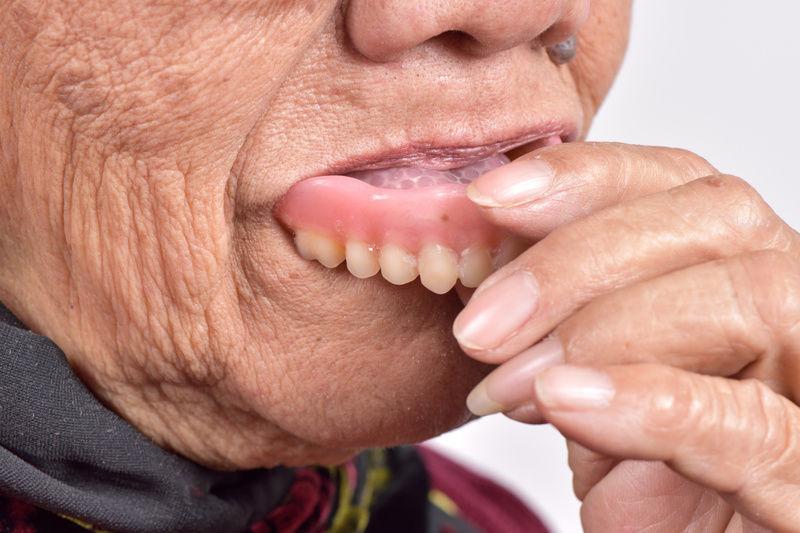 Аллергия на металлокерамические коронки и другие виды протезов, причины, симптомы, методы лечения