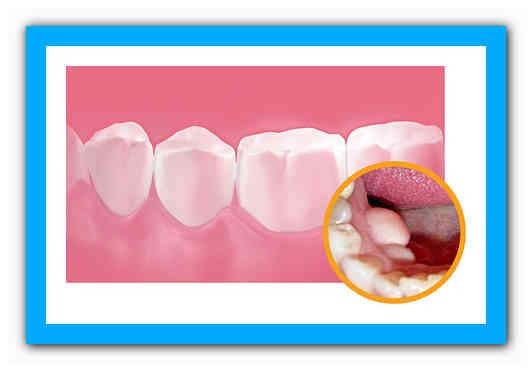Экзостоз — осложнение после удаления зуба: как избавиться от костного нароста на десне?