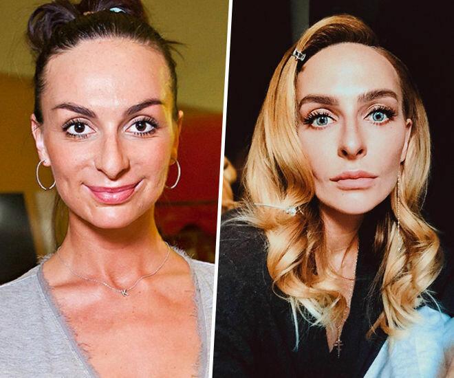 Фотографии екатерины варнавы – до и после пластики. екатерина варнава: фото до и после операции