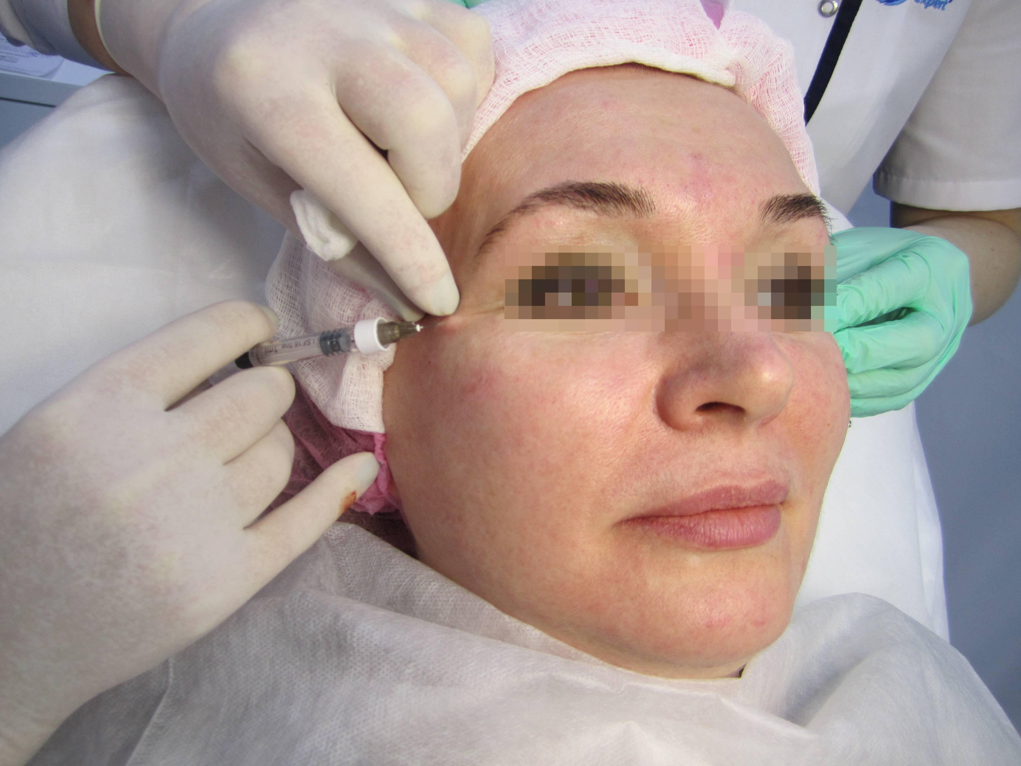 Качество кожи и скинбустеры в эстетической медицине. экспертный обзор