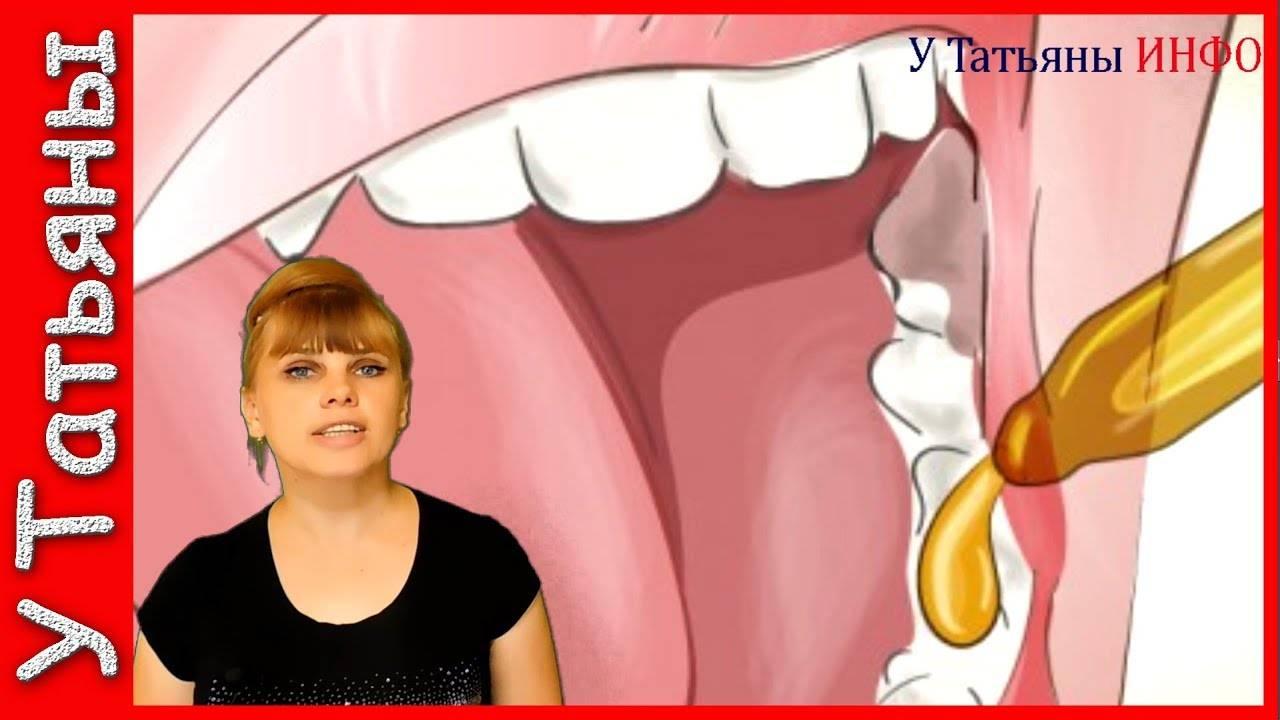 Что поможет снять зубную боль дома?