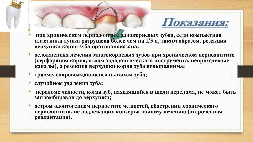 Особенности удаления зубов