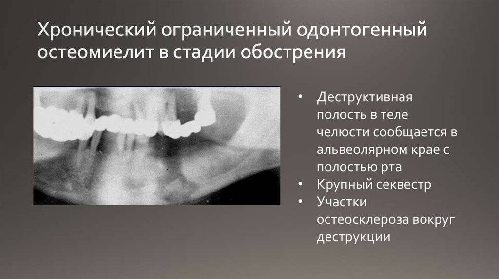 Остеомиелит челюсти: причины, симптомы, лечение