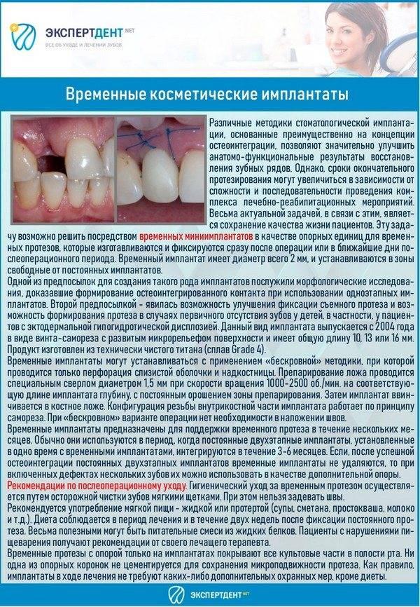 Эстетическая реставрация зубов: методы, особенности проведения процедуры и фото
