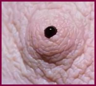 Почему идет кровь из соска при надавливании и что делать когда кровоточат грудные железы