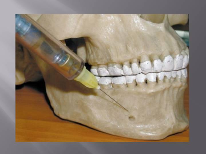 Сколько отходит анестезия зуба: через какое время проходит наркоз после удаления, и как снять?
