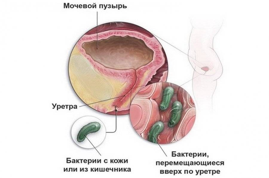 Уретрит у женщин – симптомы и быстрое лечение за 1 день