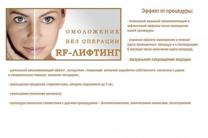 Игольчатый rf-лифтинг – принцип действия и результат микроигольчатой рф-процедуры для лица