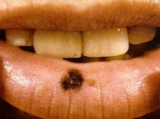 Белые пятна на губах