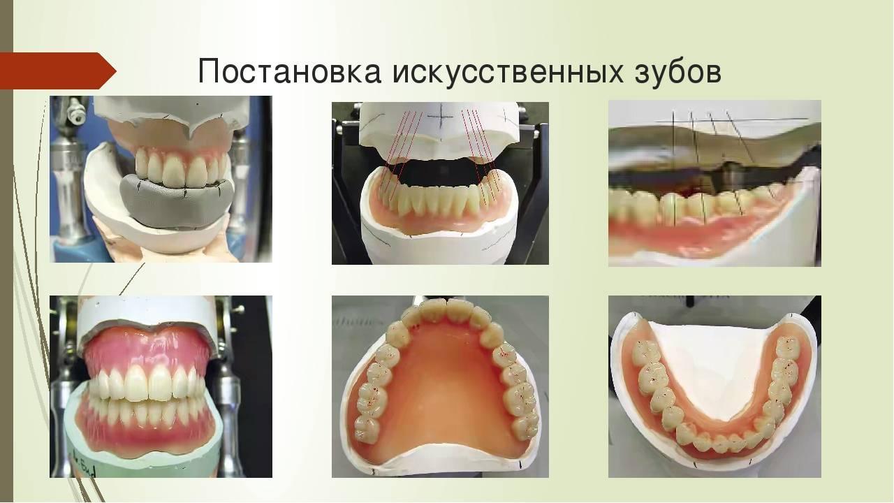 Протезирование зубов детям