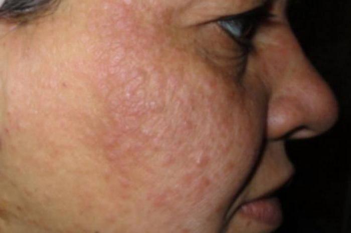 Почему возникает и как лечить лишай на лице?