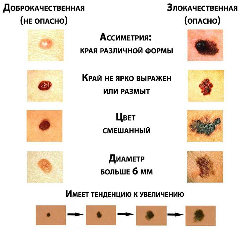 Предраковые опухоли кожи. как предупредить рак