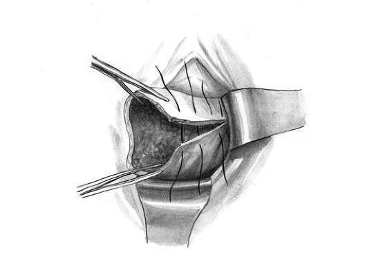 Удаление шейки матки: показания, проведение, восстановление и последствия
