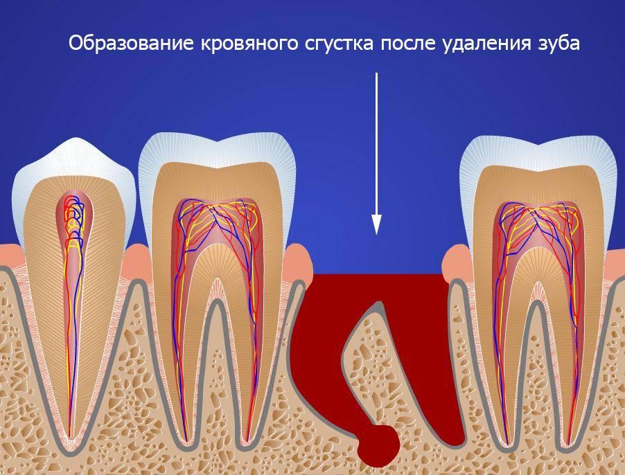 После удаления зуба болит ухо