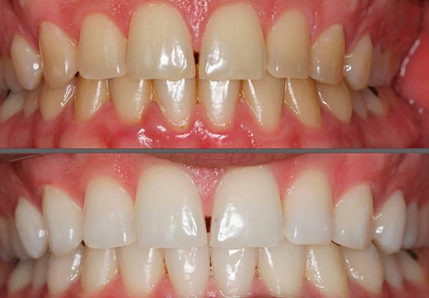 Реминерализация зубов что это