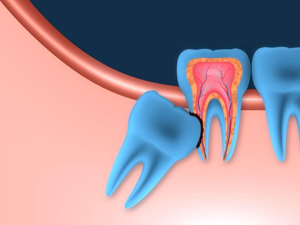 Как долго придется терпеть: сколько по времени удаляют зуб мудрости?