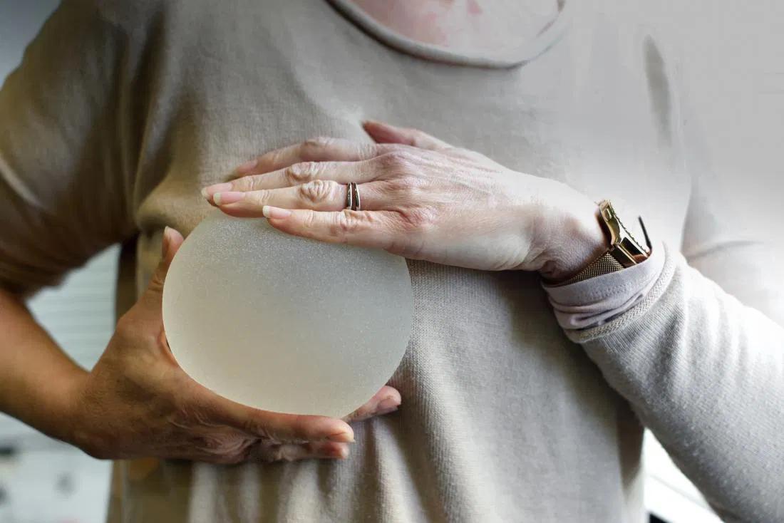 Какие грудные импланты самые лучшие: виды и фото