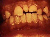 Сверхкомплектные зубы: причины возникновения и способы устранения гипердонтии