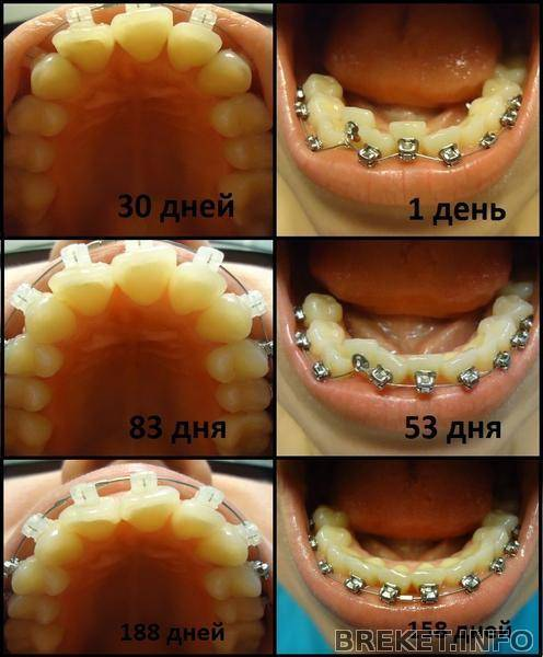 Как долго будут болеть зубы после установки брекетов и больно ли ставить брекеты?