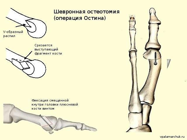 Остеотомия: показания, особенности проведения, эффективность