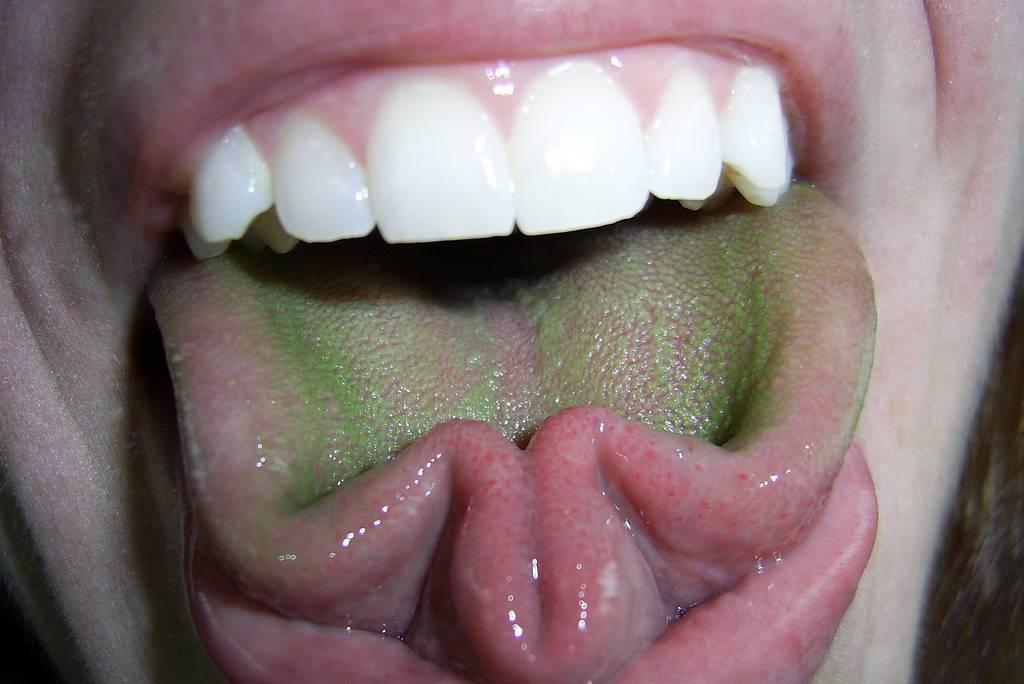 Красная полоса посередине языка показатель болезней. что может рассказать наш язык — простейшая диагностика заболеваний