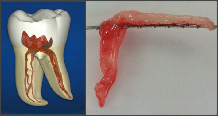 Как избавиться от боли в зубе после удаления нерва: выкладываем суть