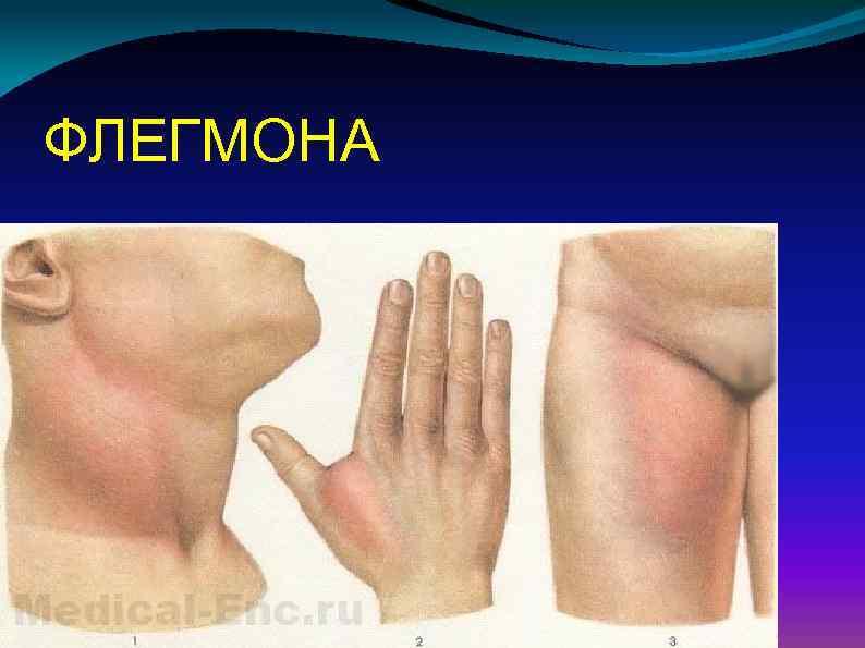 Флегмона челюстно-лицевой области                (флюс, флегмона и абсцесс полости рта, ангина людвига, отек полости рта)