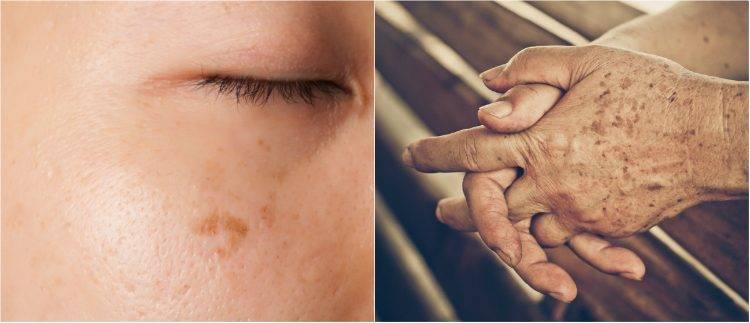 Как избавиться от пигментных пятен на лице после родов в домашних условиях, косметическими, аптечными средствами