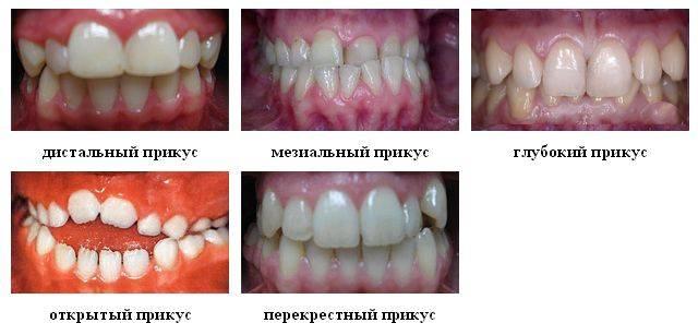 Проблема неправильного прикуса: фото, виды и последствия для человека, исправление стоматологической патологии
