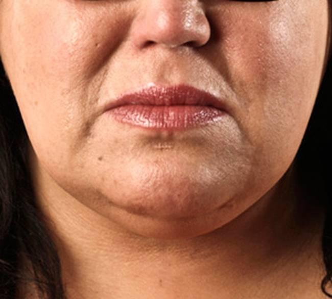 Как убрать брыли и подтянуть овал лица в домашних условиях: массажи, упражнения