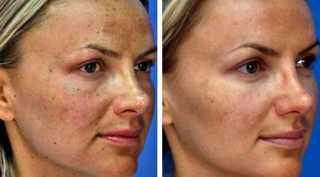 Карбокситерапия — что это такое для лица в косметологии: безинъекционная, неинвазивная, инъекционная. фото до и после, цена, отзывы