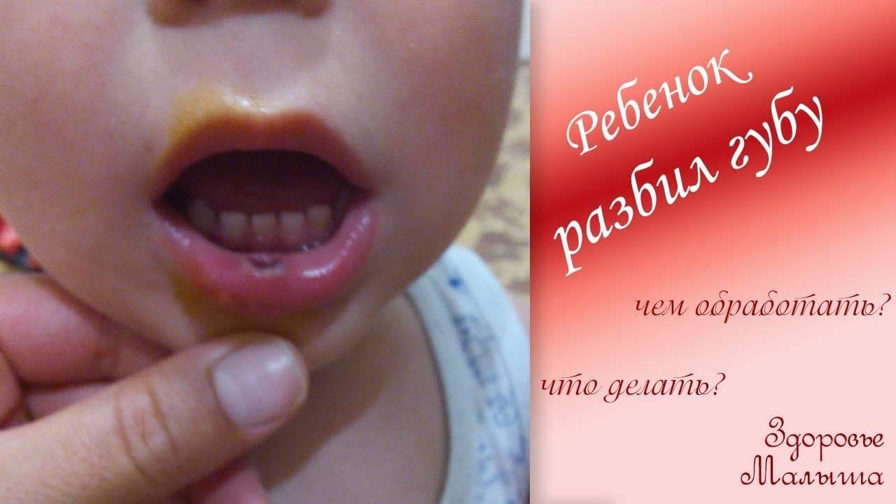 Ребенок разбил губу изнутри, опухла, что делать и как помочь малышу?