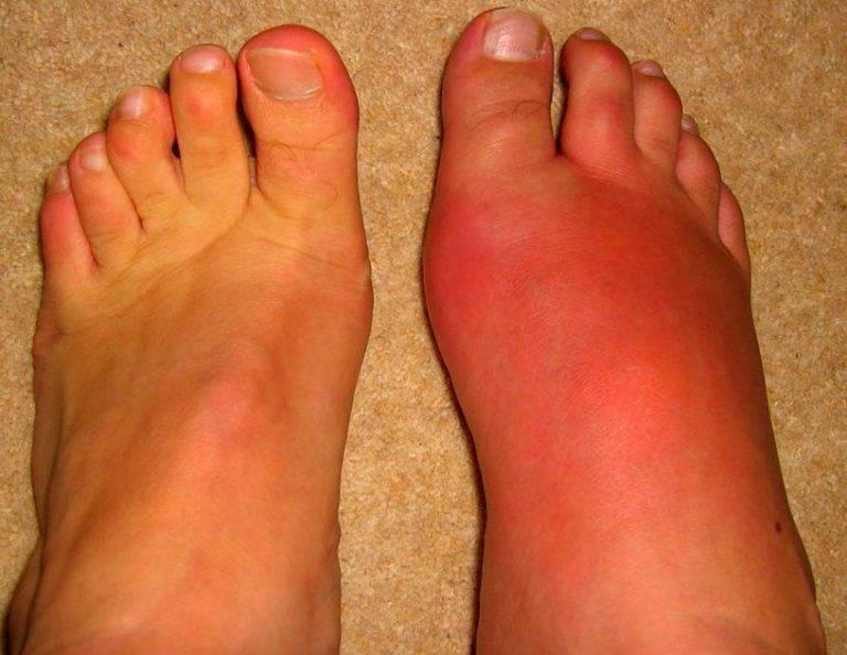 Важнейшие причины, симптомы, лечение и профилактика рожистого воспаления кожи на лице