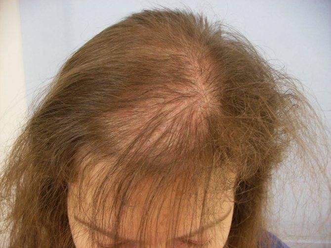 Что делать при выпадении волос у женщин при климаксе: эффективные средства и рекомендации косметологов
