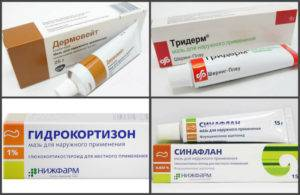 Мази, гели от аллергии на коже для взрослых и детей