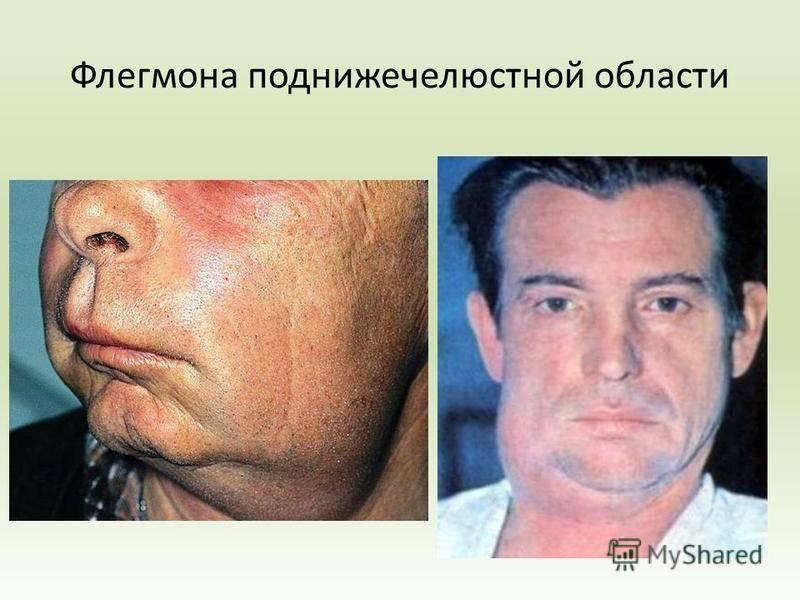 Анатомия челюстно-язычного желобка и признаки одонтогенного абсцесса или флегмоны с фото