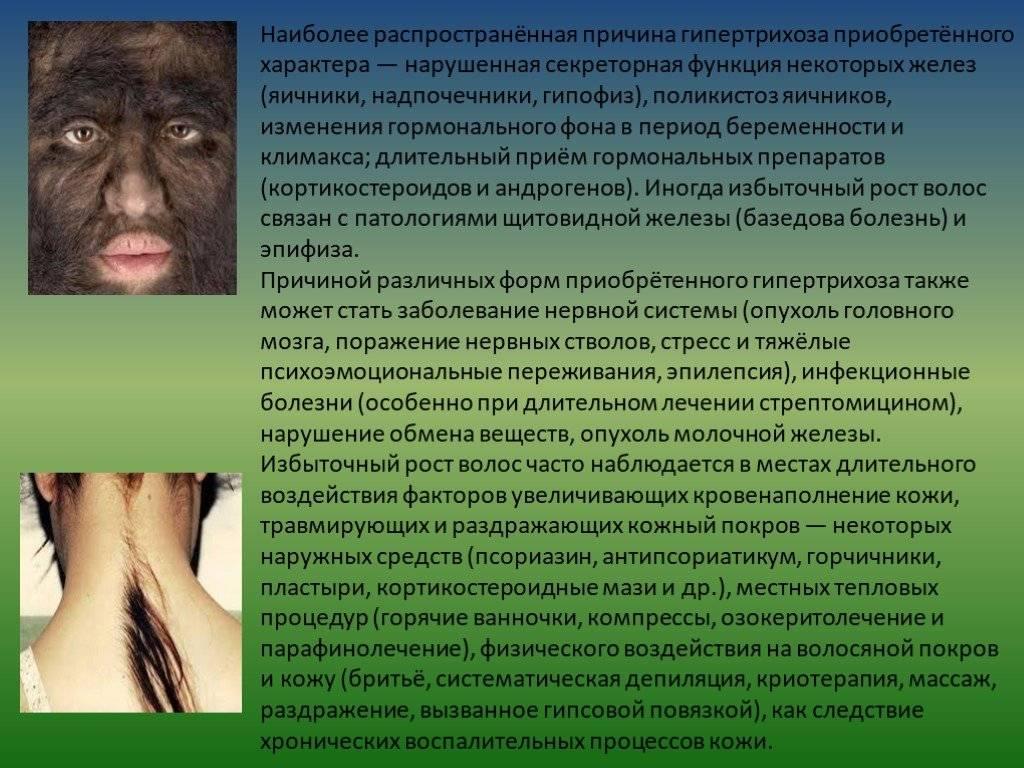 Гипертрихоз: причины возникновения, симптомы, методы лечения